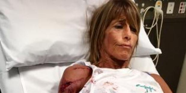 Debbie Urquhart recovering from the horrifying attack. Source: Supplied