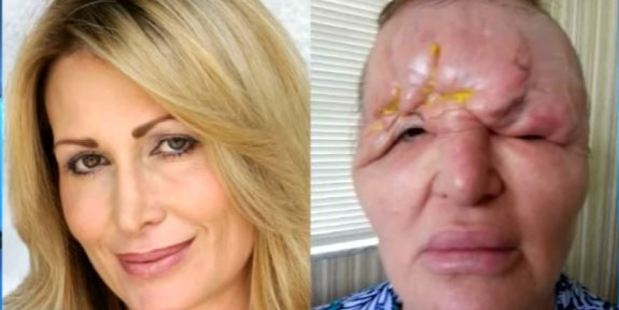 Before and after the fillers: Carol's forehead began to collapse as well as being left blind in her right eye. Photo / Youtube / TheDoctorsTV