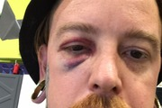 McGowan says he was randomly attacked at the tattoo studio he worked at last month. Photo / Supplied