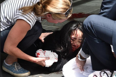 An injured woman in Bourke St, Melbourne Picture: Tony Gough Melbourne 20 January 2017 picture supplied credit: NEWS LTD