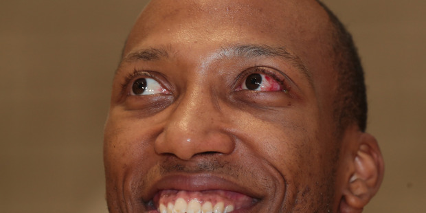 Loading NZ Breakers import Akil Mitchell during a press conference, after his horrific eye injury. Photo / Brett Phibbs