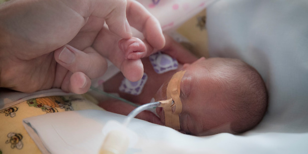 Jason Agnew holds the hand of Olivia Agnew, his 25-week-old premature baby. Photo / Greg Bowker