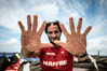 "Blair Tuke's hands show the attrition of 12 days straight sailing during the Volvo Ocean Race. The ""reverse mohawk"" was part of a sacrifice to King Neptune. Photo / Volvo Ocean Race"