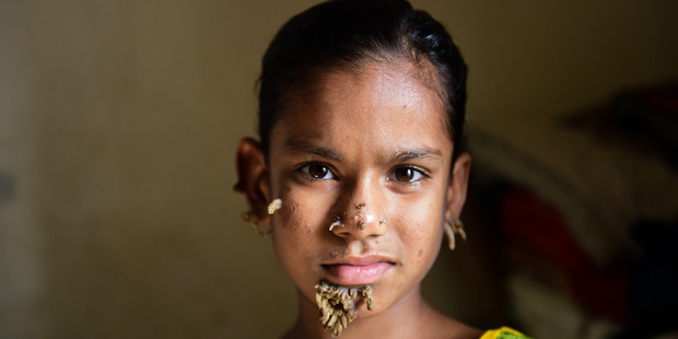Sahana Khatun, 10, who is being treated for bark-like facial growths. Photo/AFP