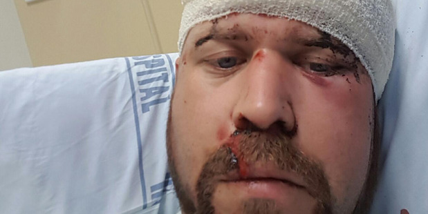Red Earth Eatery and Wine Bar co-owner Chris Turner was attacked by five men at the restaurant on Papakura's main street on Sunday, robbed and  repeatedly beat with bricks. Photo / Supplied