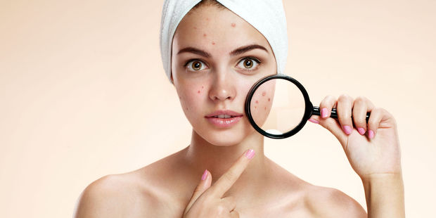 Between 40-54 per cent of men and women older than 25 years suffer from acne. Photo / 123RF