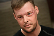 Staggering transformation: Face transplant recipient Andy Sandness attends a speech therapy appointment at the Mayo Clinic in Rochester, Minnesota. Photo / AP