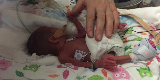 Daisy Salter a few weeks after being born prematurely. Photo / Supplied