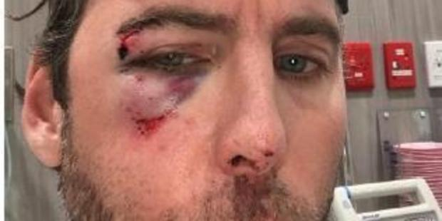 Aussie swim legend Grant Hackett posted this graphic photo of facial injuries on Instagram.