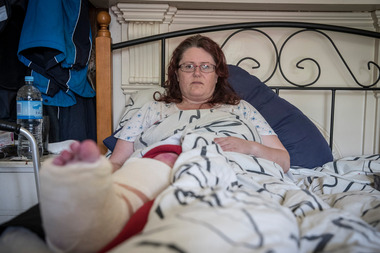 Ankle surgery patient Myrie Edwards had to wait days for her operation because of unprecedented demand for orthopaedic surgery. Photo / Michael Craig.