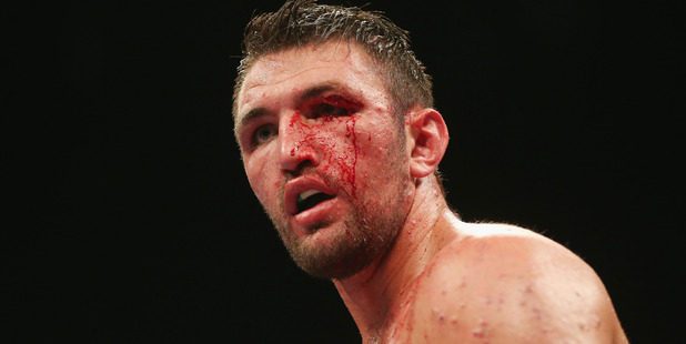 Hughie Fury's availability for his WBO world title challenge against Kiwi Joseph Parker is in the balance. / Photo: AP