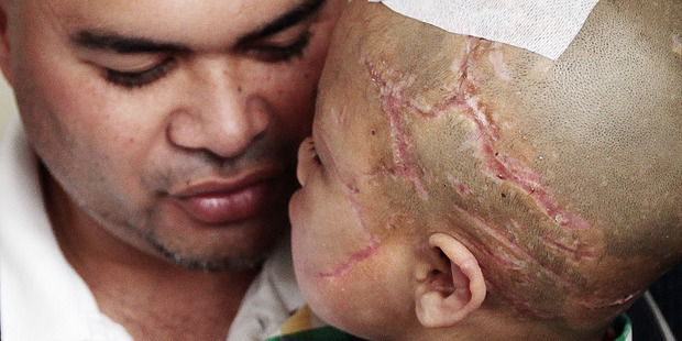Orlando Shepherd with his son who was attacked by their dog. Photo / Doug Sherring