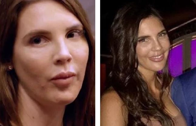 Tracey before and after she had her fillers disolved. Photo / News.com.au