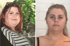 Nicole before and after surgery.  Photos / Supplied