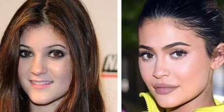 Kylie made dramatic changes to her appearance at an early age. Photos / Getty Images