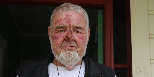Shannon man Corny Andrews was attacked at his farm in Shannon. Photo / Horowhenua Guardian
