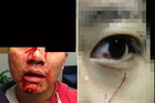 Victims of serious assaults on Asian students in Auckland.