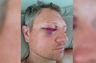 Derek Tanner's eye socket was smashed to pieces in the ambush attack and his eyesight threatened. Even after surgery, he faces a heightened risk of losing sight as he ages. Photo / Supplied